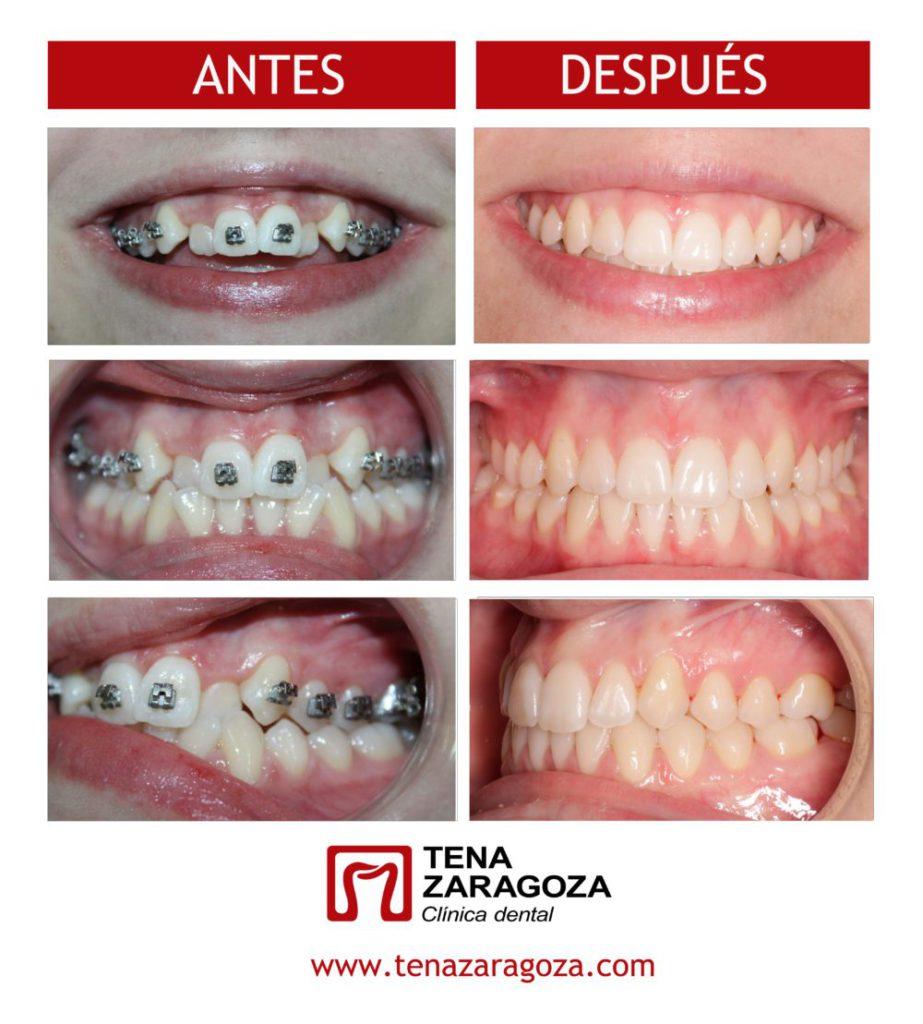 Ortodoncia, autoligado, oclusión cruzada, apiñamiento