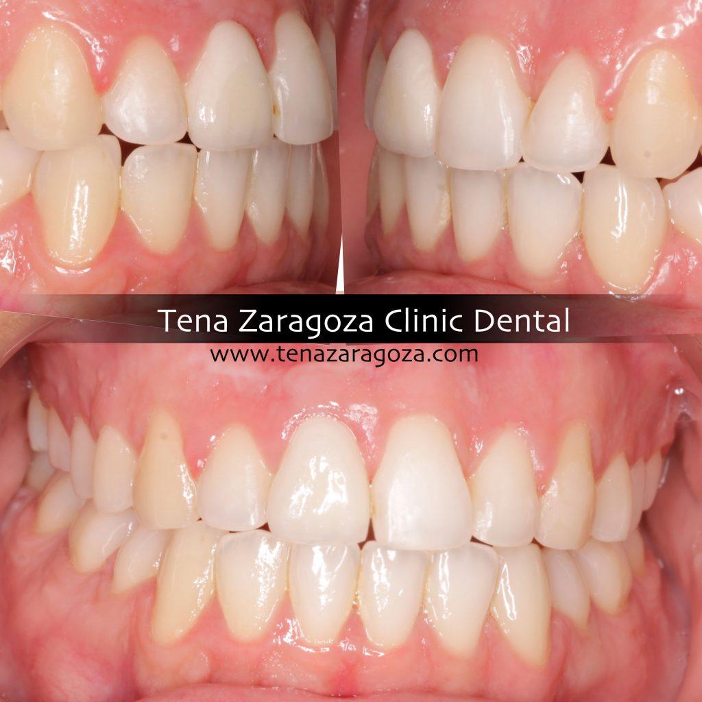Ortodoncia e implantología. fotografías antes y después