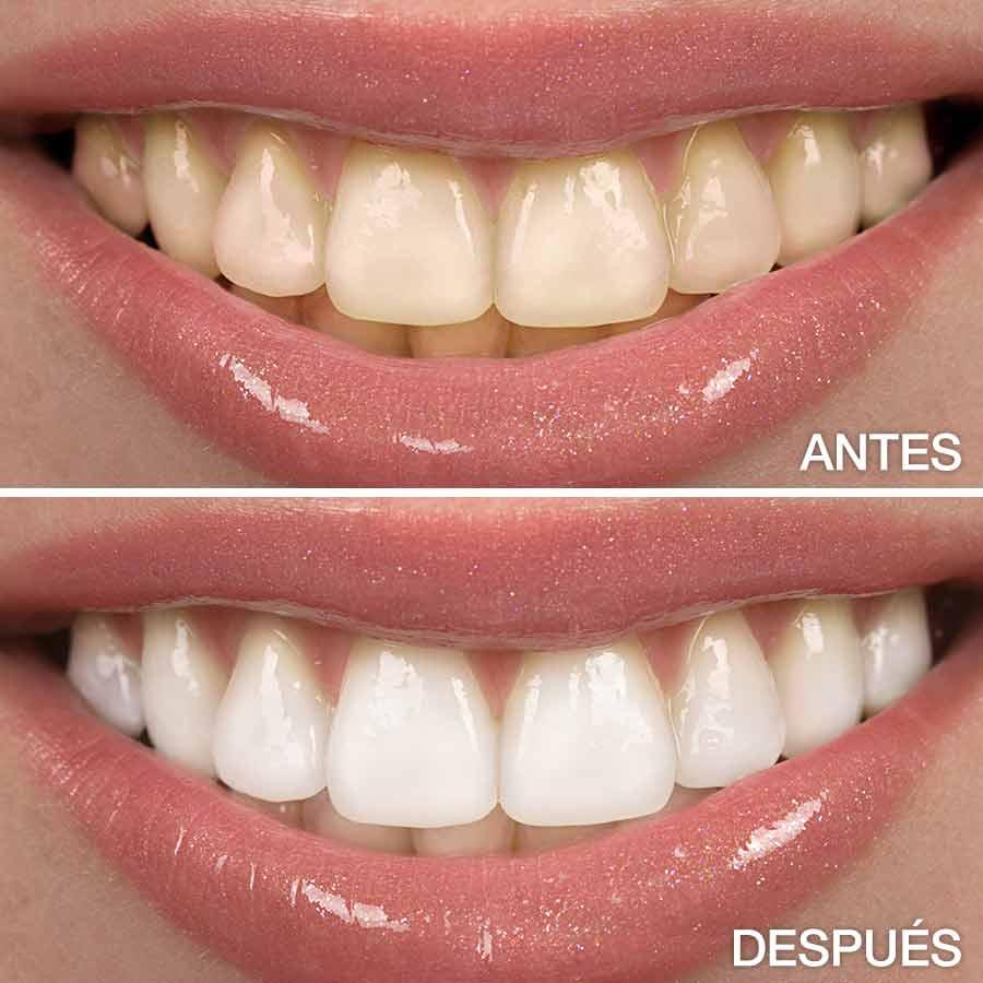 blanqueamiento dental antes y después.